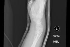 segmental_forearm2