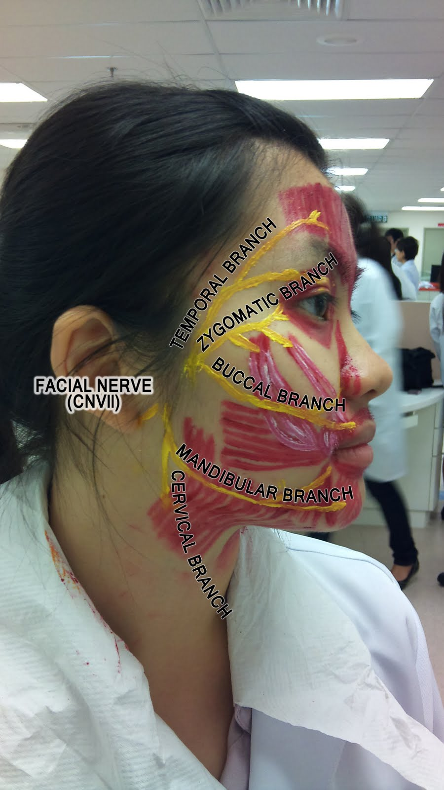 Muscles of Facial Expression Muscles + Nerve