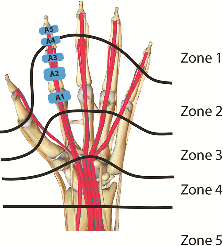 flexor tendon zones